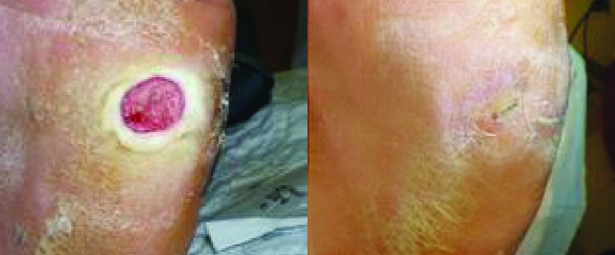 wound healing capacity using honey Here is a medihoney wound dressing review,  • at dressing change, the trauma and pain is reduced due to the moist would healing environment honey provides.