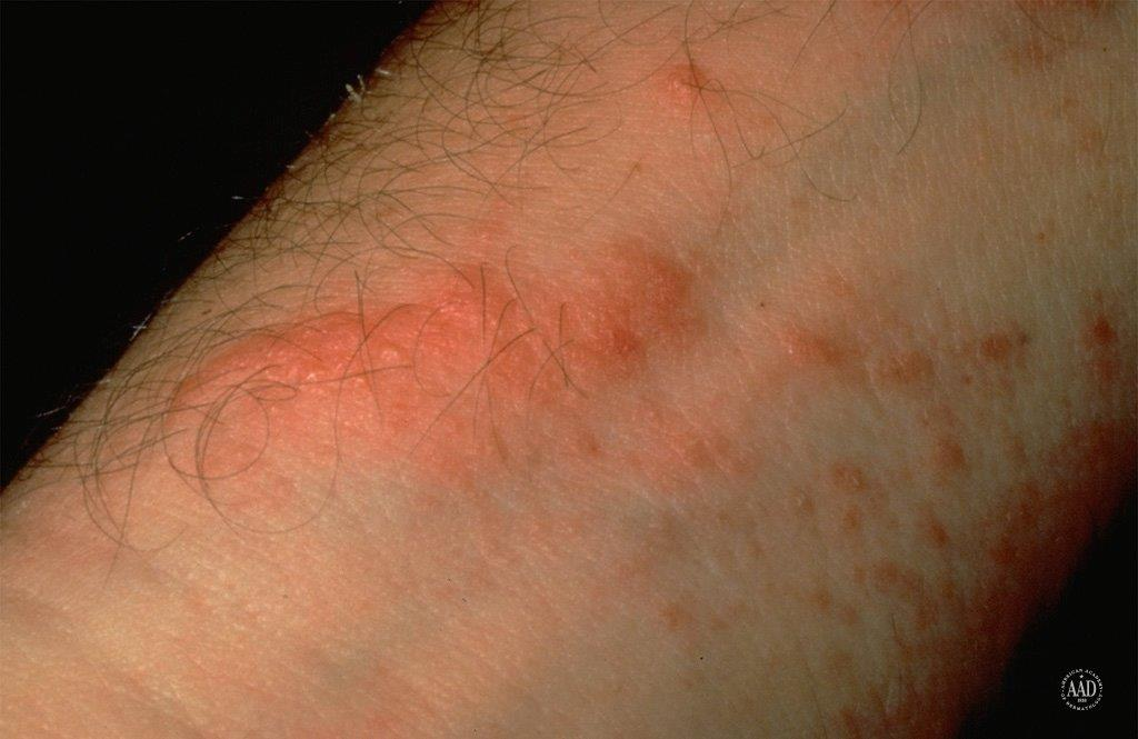 Treating Poison Ivy: Ease the Itch with Tips From ...