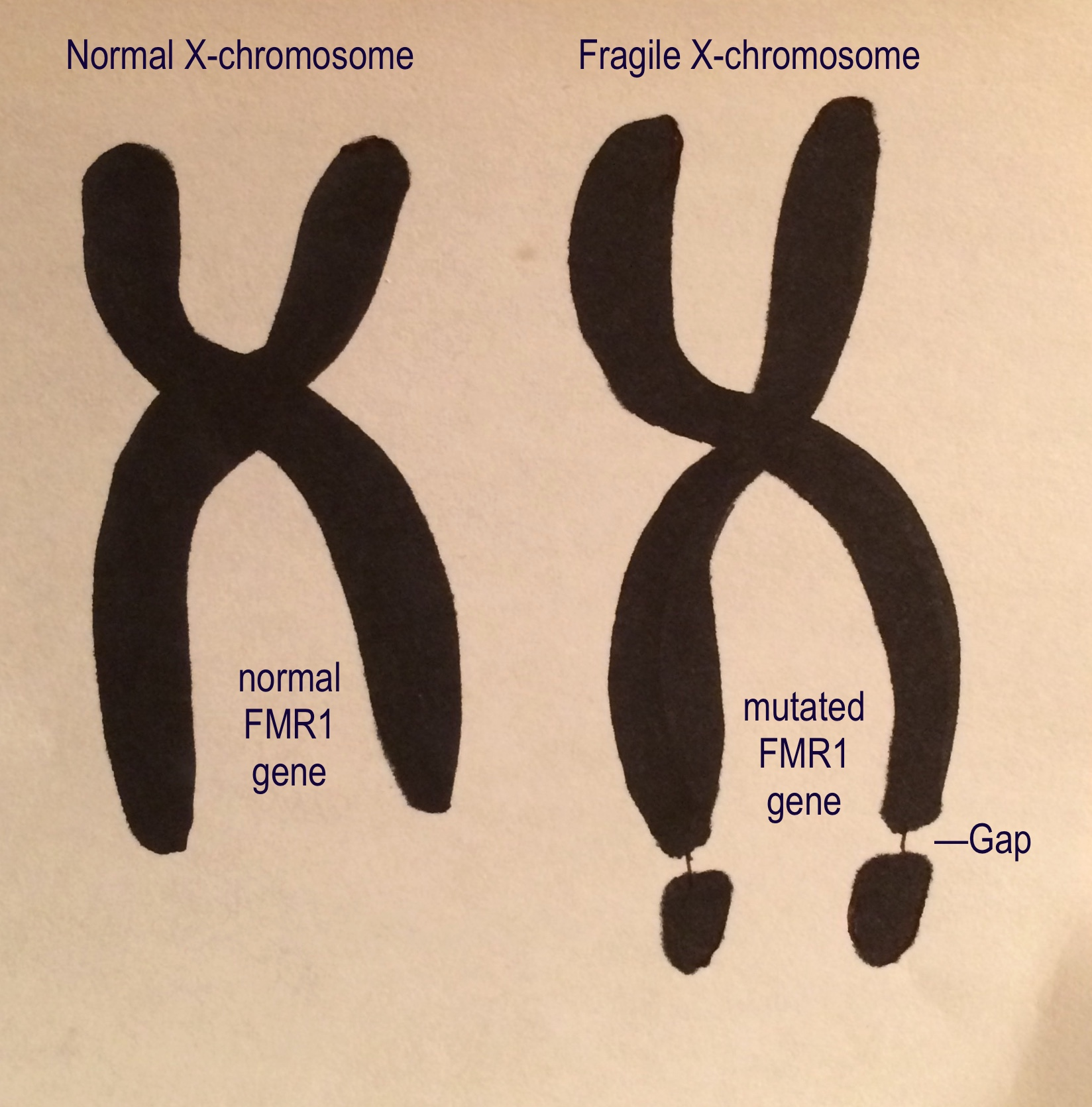 Fragile X Study fers Hope of New Autism Treatment