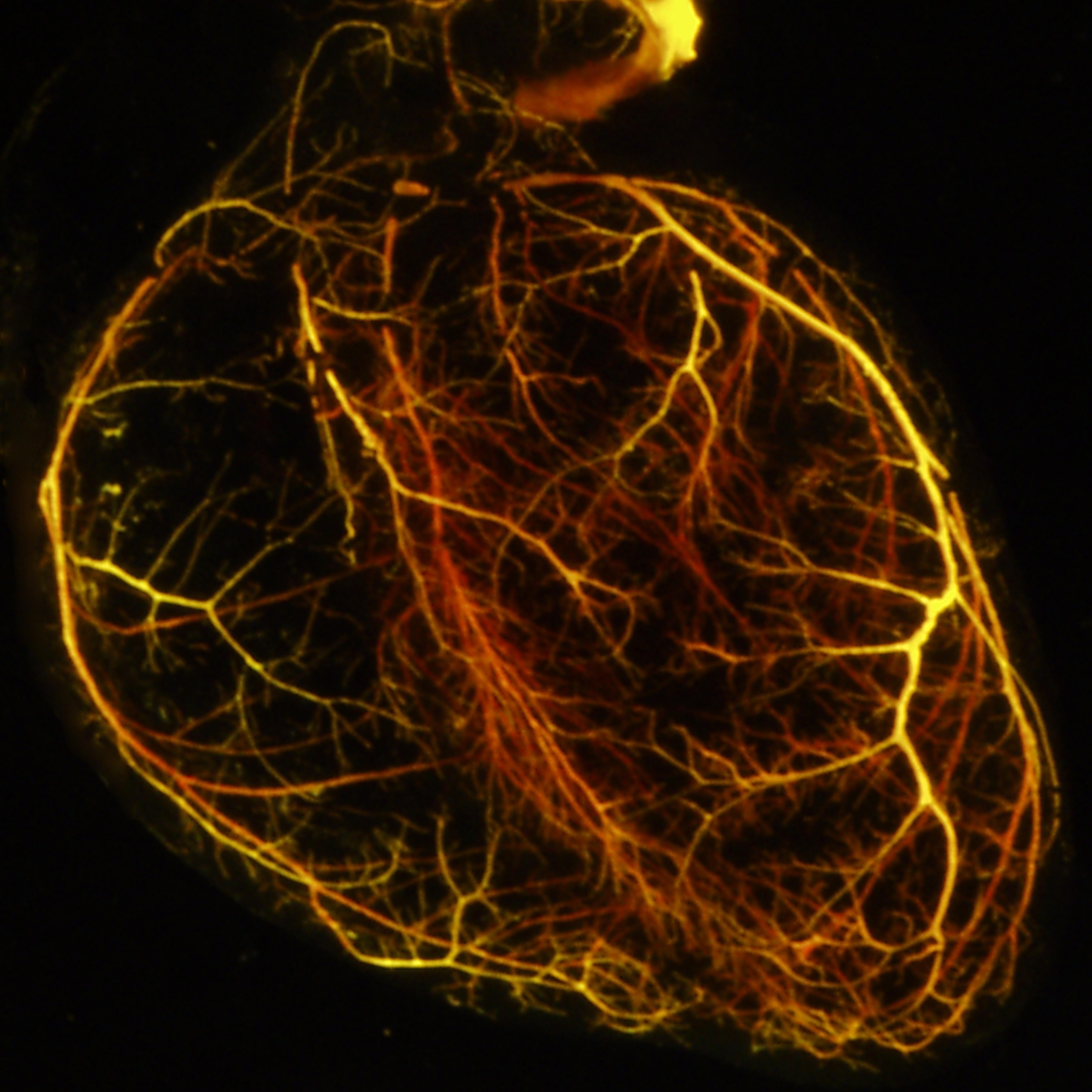 Penn Preclinical Study Outlines Cardiovascular Side