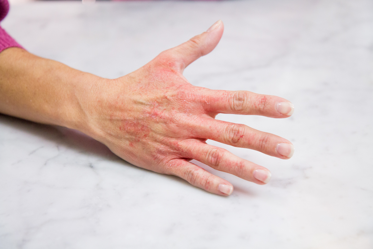 Jackson latex glove hand rash cure