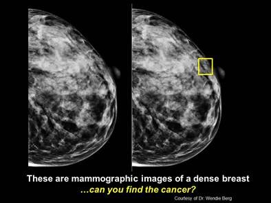 Breast Cancer Website Launched To Provide Info On Dense Breasts