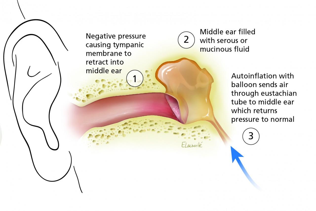 Simple Procedure Using A Nasal Balloon Can Help Treat