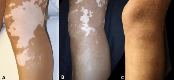 Mktp Surgery Has Long Term Benefit For Restoring Skin Pigmentation In Vitiligo Patients