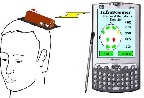 Newswise: Researchers Develop First Handheld Device to Detect Brain Hematoma