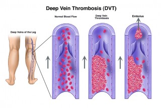 New treatment can remove blood clots in the leg non-surgically