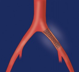 Stent placed in iliac to retore blood flow