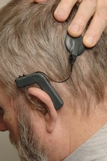 Newswise: New Hybrid Hearing Device Being Tested, Combines Advantages of Hearing Aids, Implants