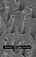 Scanning electron microscope image of worm-like structures 'growing' from dental tubules deep inside a molar.