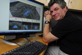 Professor Allen Tannenbaum displays the computer program he developed to extract the prostate (shown in blue) from magnetic resonance images.