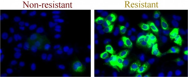 Infection of liver cells (green) by a non-resistant virus (left panel) is efficiently cleared by drug treatment. This same drug treatment has no effect on a resistant form of the virus (right) and infection can therefore persist (green).