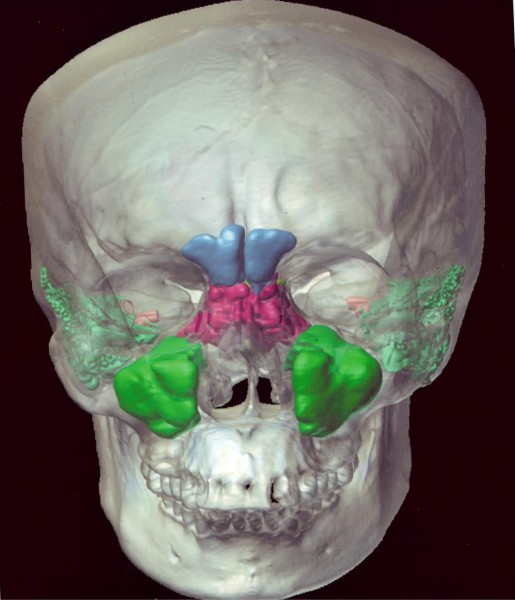 The walls of the human maxillary sinus (pictured in green above) flex during yawning like a bellows, which in turn facilitates brain cooling.