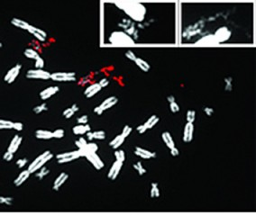 A pulverized chromosome appears in red amid the normal chromosomes in white.