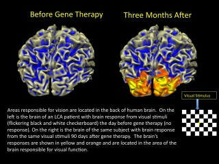 After gene therapy for congenital blindness, areas in the part of the brain responsible for vision show a response after a visual stimulus.