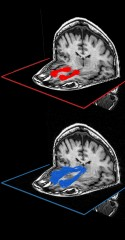 Brain scans showing the white-matter pathways involved in everyday learning: Top, the pathway shown in red connects the medial prefrontal cortex to the ventral...