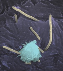An immune cell called a neutrophil (shown in light blue) attacks bacteria that cause urinary tract infections. Scientists have discovered that the bacteria...