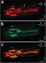Simultaneous photoacoustic (a)and ultrasound (b) images of a rabbit esophagus show the clarity and detail gained by combining the two imaging techniques...