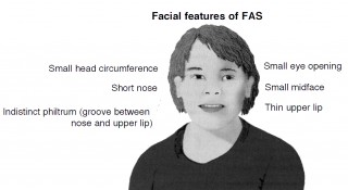 This image depicts the facial features of fetal alcohol syndrome (FAS).