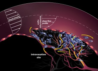 "Illustration of the early stage of metastasis, called ""intravasation."" Tumor cells (blue) in contact with the bloodstream experience shear forces that..."