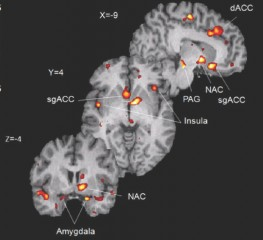 A composite map of the areas of the brain where levels of the brain's own painkiller, mu-opioid, increased the most when volunteers received a placebo...