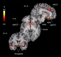 Brain evidence: colored areas show regions of greater opioid release during placebo administration in volunteers with high levels of resilience, straightforwardness...