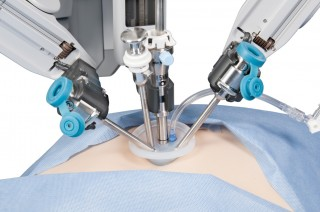 Special instruments for the da Vinci Surgical System allow Youssef to remove the gallbladder through just a one inch incision in a patient's navel.