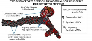 The research team was able to create from stem cells two types of smooth muscle cells needed to grow new blood vessels.
