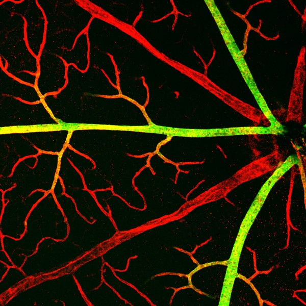 Blood vessels near the center of a healthy mouse retina. Arteries in green; veins in red.