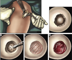 An illustration of the cartilage repair surgical procedure. A mini-incision exposes the cartilage defect (top left-hand panel), and any dead tissue is removed...