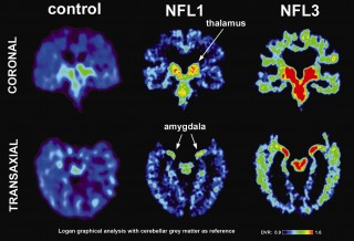 The left image shows a normal brain scan and middle and right images show scans of pro football players from the study.  The green and red colors demonstrate...