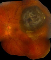 A melanoma that develop in the eye (above) often are fatal. But uveal melanoma tumors that have mutations in the SF3B1 gene are more likely to have a good...