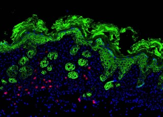 Innate immune cells in inflamed skin. A histologic section of skin isolated from MC903-treated Rag1-/- mice was stained to visualize cytokeratin (green),...