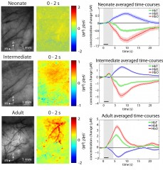 Development of the Hemodynamic Response 