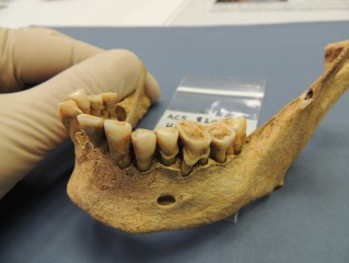 Teeth of late Iron Age/Roman woman showing large dental calculus deposit, from Cambridge area, UK.