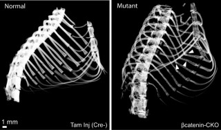 CT scan of normal rib cage (left) and rib cage (right) of mutated animal lacking beta catenin in stromal cells. Arrowheads point to fractures.