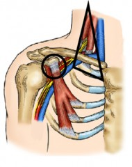 Surgery to treat neurogenic thoracic outlet syndrome targets two areas of nerve compression – the scalene triangle (black triangle) and the pectoralis...