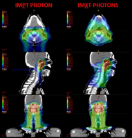 Newswise: MD Anderson Cancer Center Offers Next Evolution of Cancer Treatment with Intensity Modulated Proton Therapy