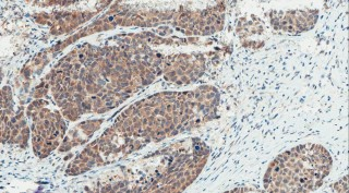 Squamous cell carcinoma of the head and neck staining for p16, a tumor suppressor protein. Staining positive for p16 was associated with longer progression...
