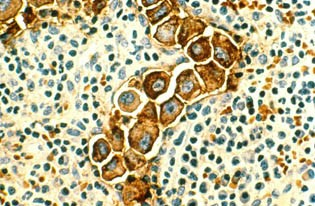 Metastasized human breast cancer cells (magnified 400 times, stained brown) in lymph nodes.