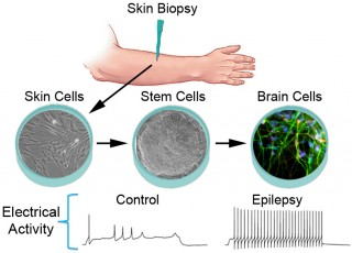 This diagram shows the process by which skin cells from epilepsy patients and people without the disease were transformed into stem cells and then into...