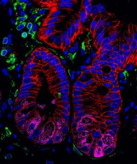 A histologic section of intestinal tissue isolated from healthy mice stained to visualize intestinal epithelial cells (EpCAM, red), including Paneth cells...