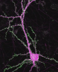 Caption: Fluorescence image of a neuron labeled for synapses (green) and cell structure (magenta).