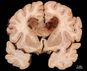 Human brain specimen with glioblastoma multiforme.