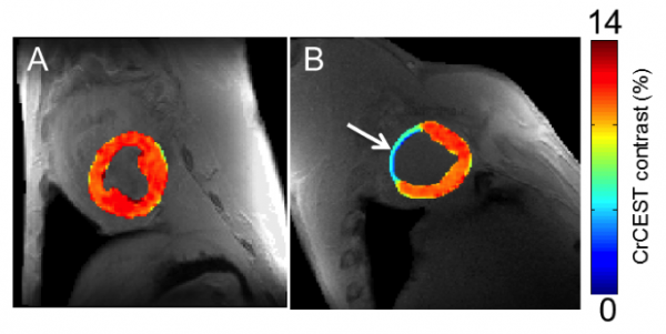On the left, creatine CEST maps of healthy myocardium in a large animal, and on the right, eight week-old infarcted tissue, with noticeably less creatine. Arrow on right indicates infarcted region of heart tissue.
