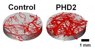 Micro-CT images of blood vessels growing within tissue scaffolds implanted in mice. Blood vessel volume increased threefold in tissue scaffolds that delivered...