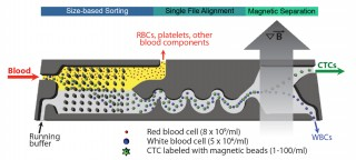 The microfluidic CTC-iChip system first sorts the various cells in a blood sample by size, allowing only CTCs and white blood cells to enter the inertial...