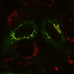 In normal cells, phosphotransferase (green) is shown overlapping with the Golgi apparatus (red), which indicates that phosphotransferase is located in the Golgi,...