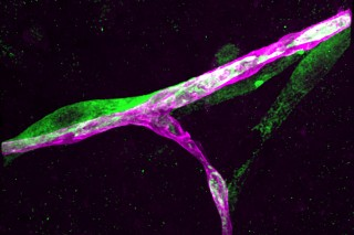 This image shows a breast cancer cell (green) clinging to a blood capillary (purple) in the brain.