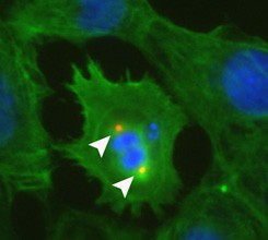 In the heart muscle cell above, the arrows show an early sign of replication.
