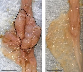 The development of intestinal tumors (polyps) in mice (left) was prevented by modifying the composition of gut microbes (right).